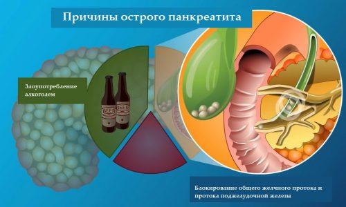 Панкреатит бывает разной этиологии