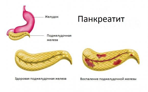Головные боли при оргазме чем лечить