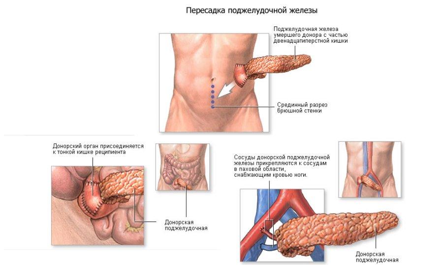 Лечение поджелудочной железы диета Лечение
