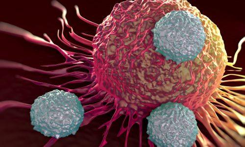 Самым опасным осложнением панкреатита считается рак