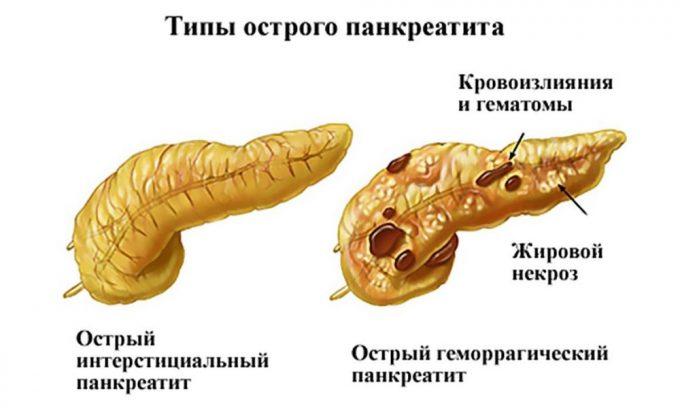 При любом типе панкреатита наблюдаются диффузные изменения тканей поджелудочной железы