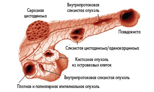 Кистозные образования поджелудочной железы