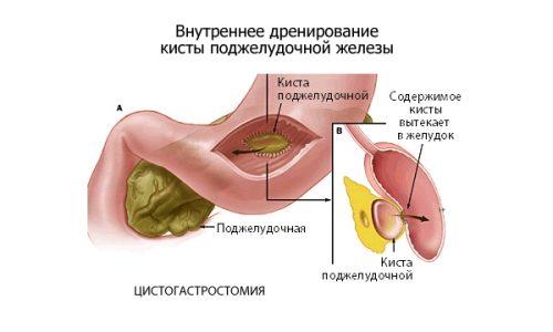 Внутреннее дренирвоание кисты поджелудочной железы