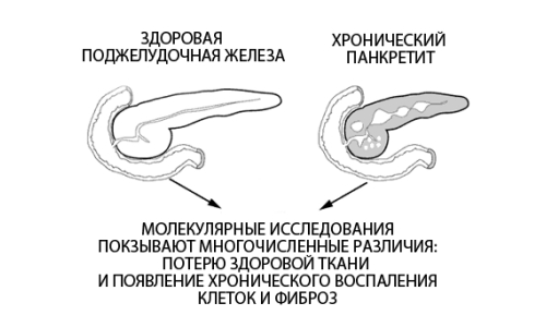 Схема хронического панкреатита