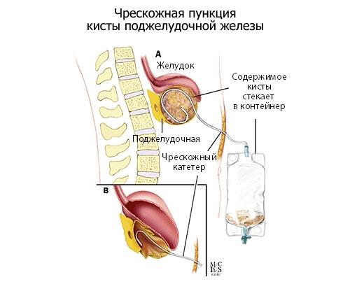 Чрескожная пункция кисты поджелудочной