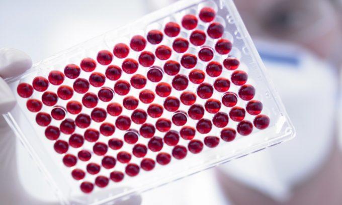 Сразу после прибытия в стационар врач назначает больному биохимический анализ крови