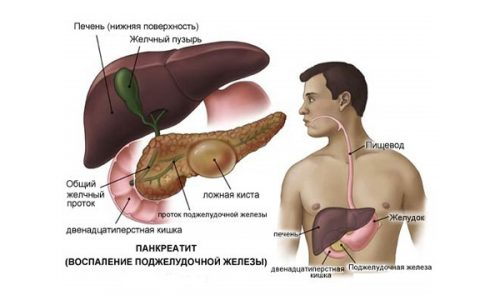 Ложная киста поджелудочной железы