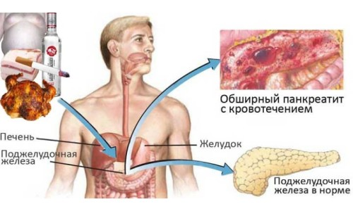 Влияние вредных привычек и неправильного питания на поджелудочную железу