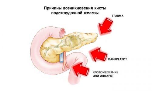 Причины возникновения кисты поджелудочной железы