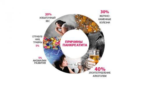 Причины панкреаита