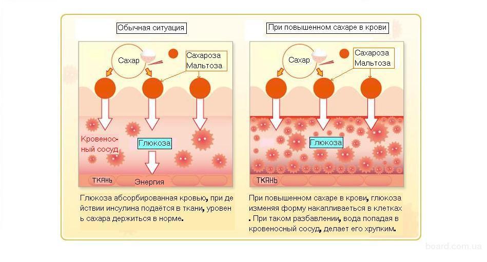 Рана от сахарного диабета