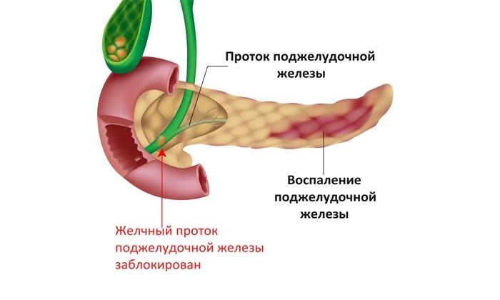это воспаление поджелудочной железы признаки и лечение утеплиться осенью зимой