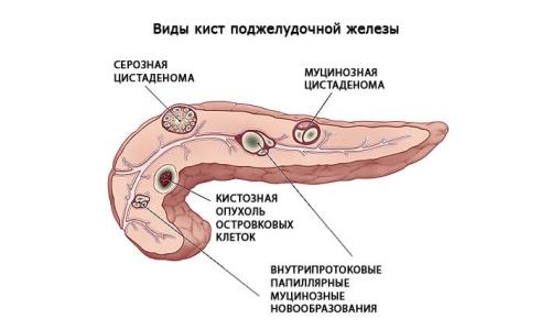 как обнаружить паразитов в организме человека