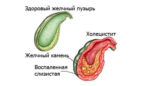 Схема холецистита - воспаления желчного пузыря