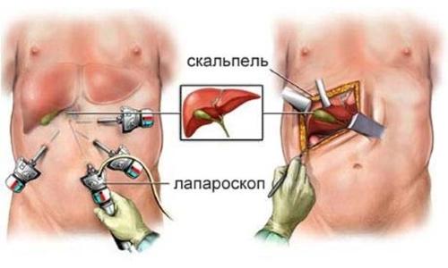 Лапароскопия поджелудочной железы