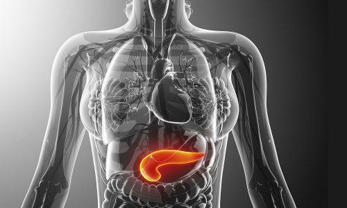 Панкреатит - это воспаление поджелудочной железы, иногда его исход может быть трагическим для пациента