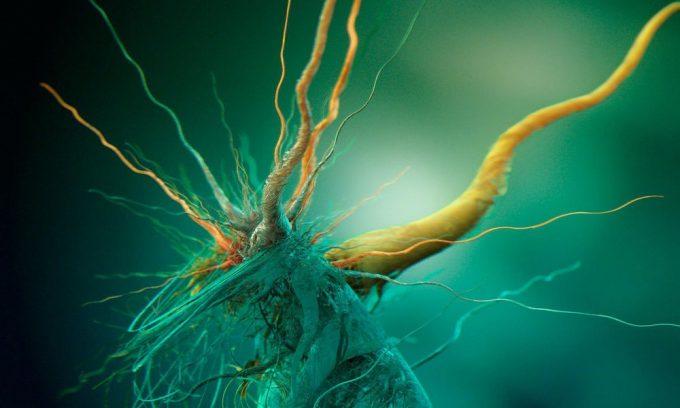 Воспаление поджелудочной железы часто можно спутать с ущемлением нервных окончаний