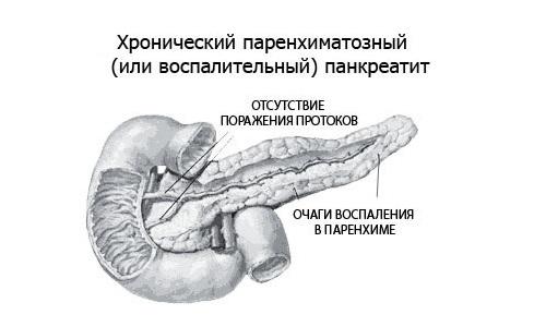 При хроническом паренхиматозном панкреатите стадии обострения постоянно сменяются ремиссиями