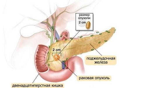 Одно из поздних осложнений панкреатита - опухоли поджелудочной железы