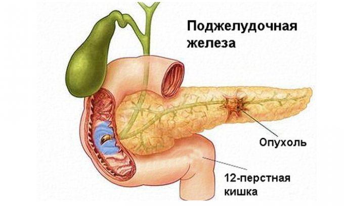 Наличие патологических клеток приводит к развитию доброкачественной или злокачественной опухоли.